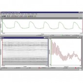 Electroglottograph