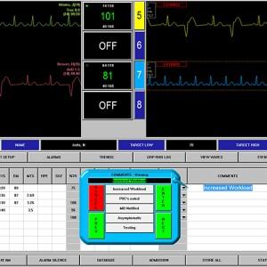Pulmonary Rehabilitation Central Monitoring Station For